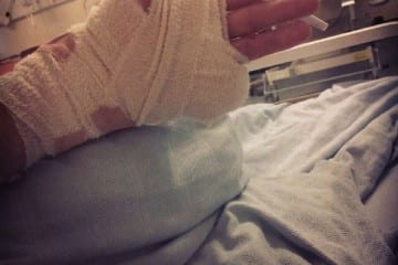 teen-loses-finger-rave
