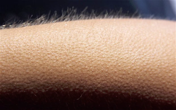 Study: Those Who Get Goosebumps Listening To Music Have Different Brain Structures Than Those Who Don't